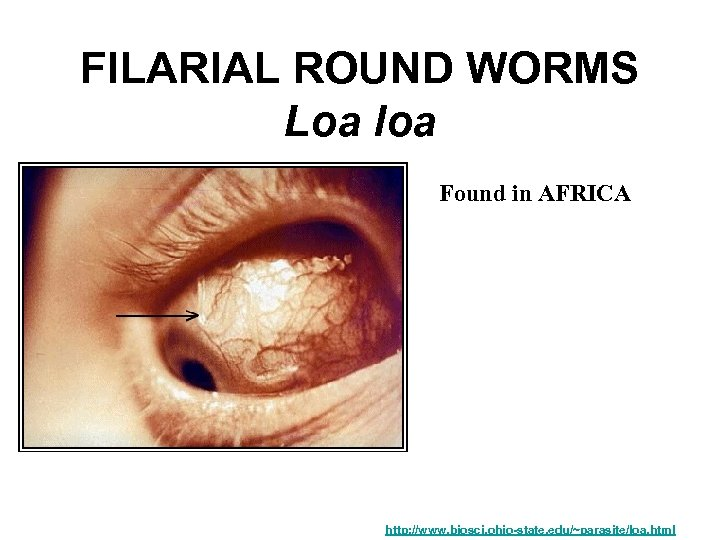FILARIAL ROUND WORMS Loa loa Found in AFRICA http: //www. biosci. ohio-state. edu/~parasite/loa. html