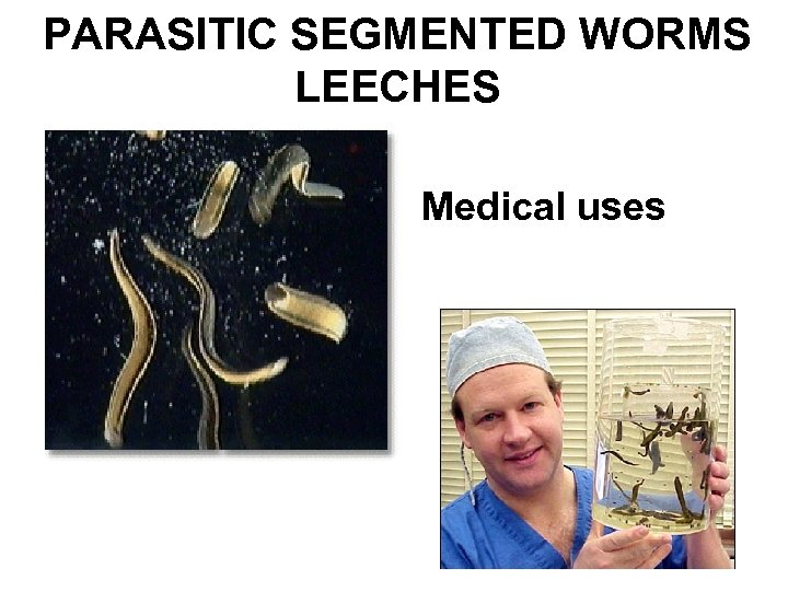 PARASITIC SEGMENTED WORMS LEECHES Medical uses