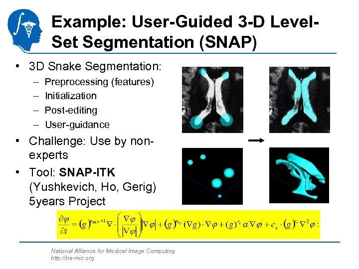 Example: User-Guided 3 -D Level. Set Segmentation (SNAP) • 3 D Snake Segmentation: –