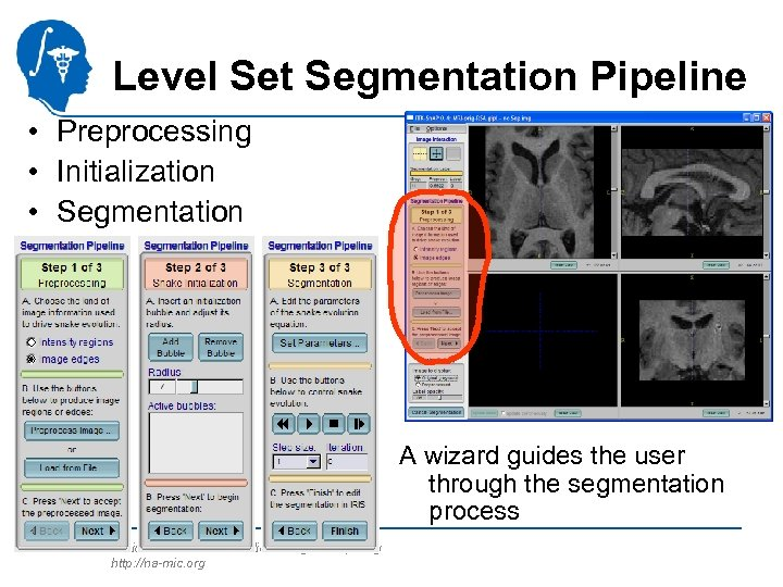 Level Set Segmentation Pipeline • Preprocessing • Initialization • Segmentation A wizard guides the