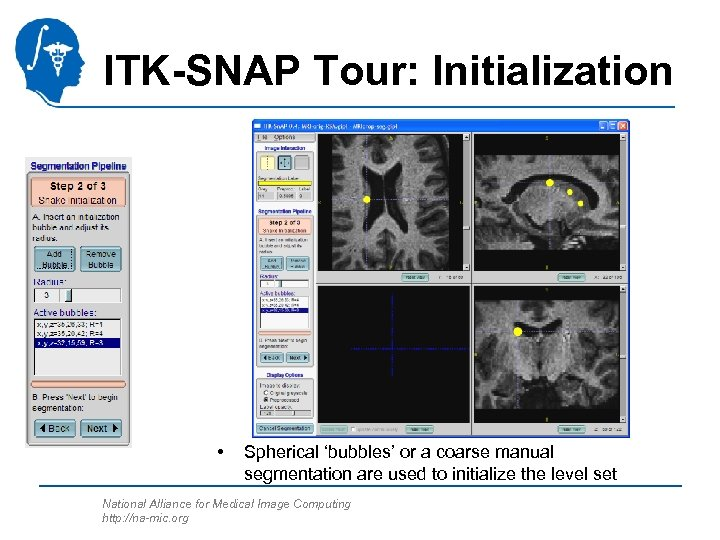 ITK-SNAP Tour: Initialization • Spherical 'bubbles' or a coarse manual segmentation are used to