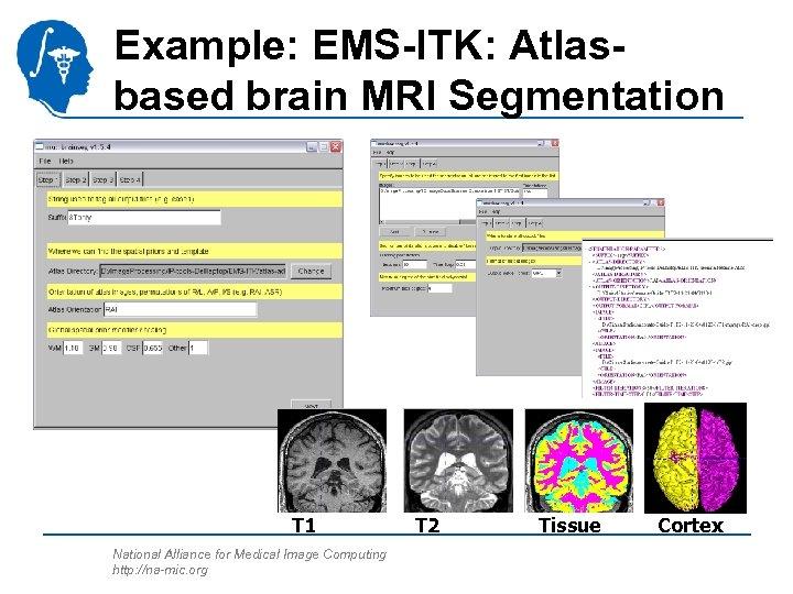 Example: EMS-ITK: Atlasbased brain MRI Segmentation T 1 National Alliance for Medical Image Computing