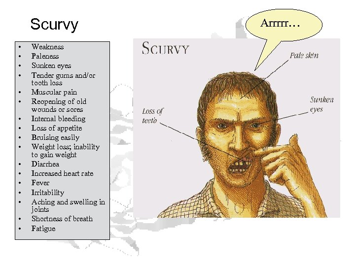 Scurvy • • • • • Weakness Paleness Sunken eyes Tender gums and/or tooth