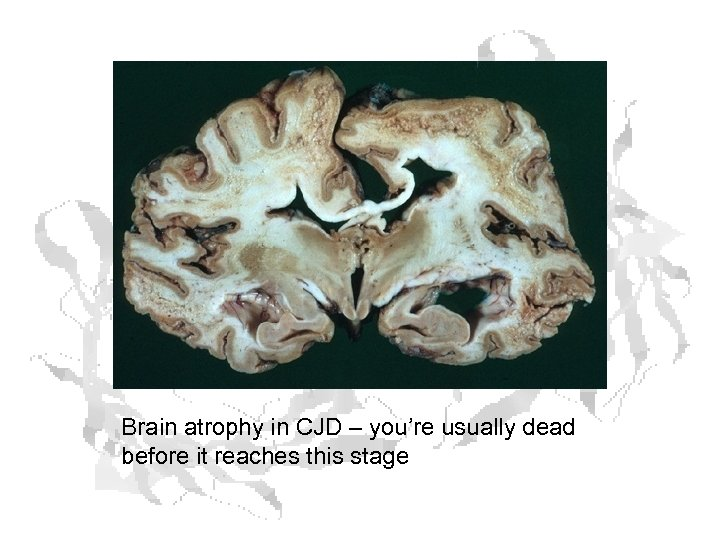 Brain atrophy in CJD – you're usually dead before it reaches this stage
