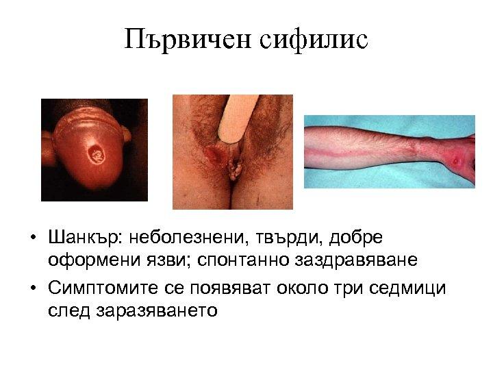Първичен сифилис • Шанкър: неболезнени, твърди, добре оформени язви; спонтанно заздравяване • Симптомите се