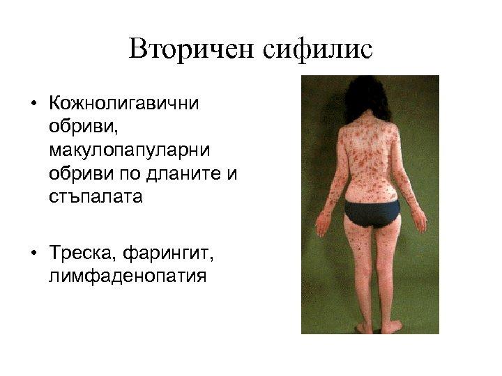 Вторичен сифилис • Кожнолигавични обриви, макулопапуларни обриви по дланите и стъпалата • Треска, фарингит,