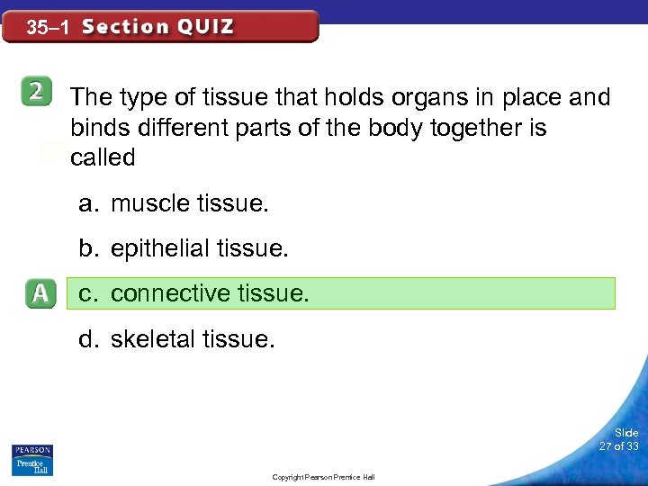 35– 1 The type of tissue that holds organs in place and binds different