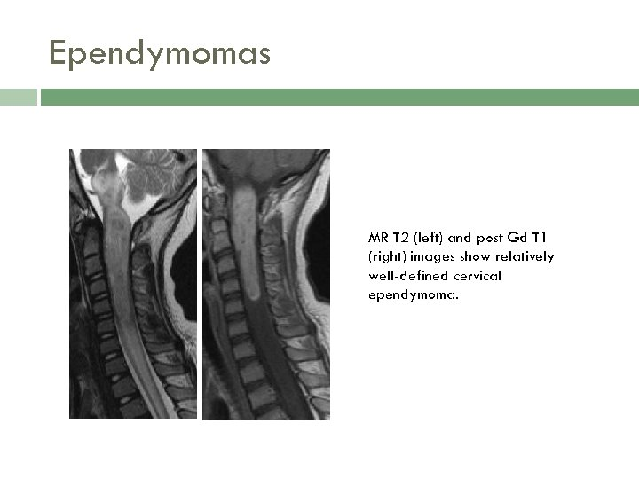 Ependymomas MR T 2 (left) and post Gd T 1 (right) images show relatively
