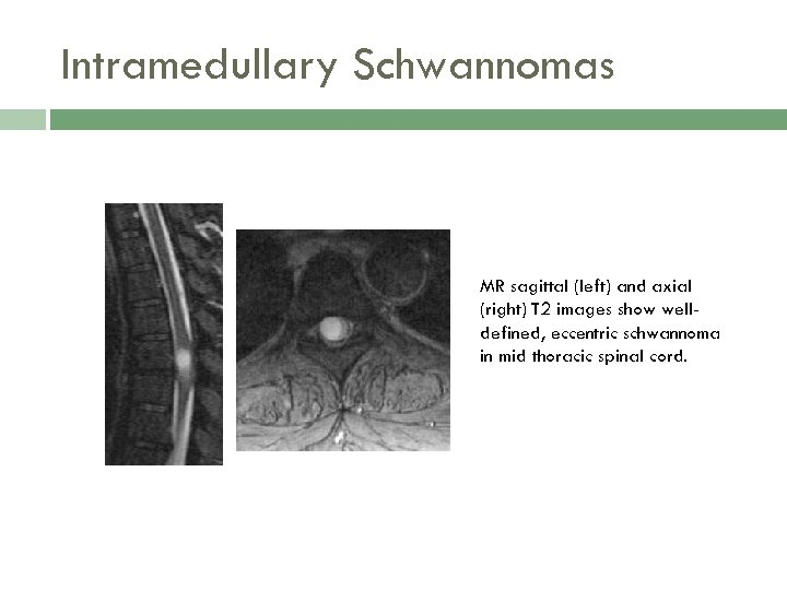 Intramedullary Schwannomas MR sagittal (left) and axial (right) T 2 images show welldefined, eccentric