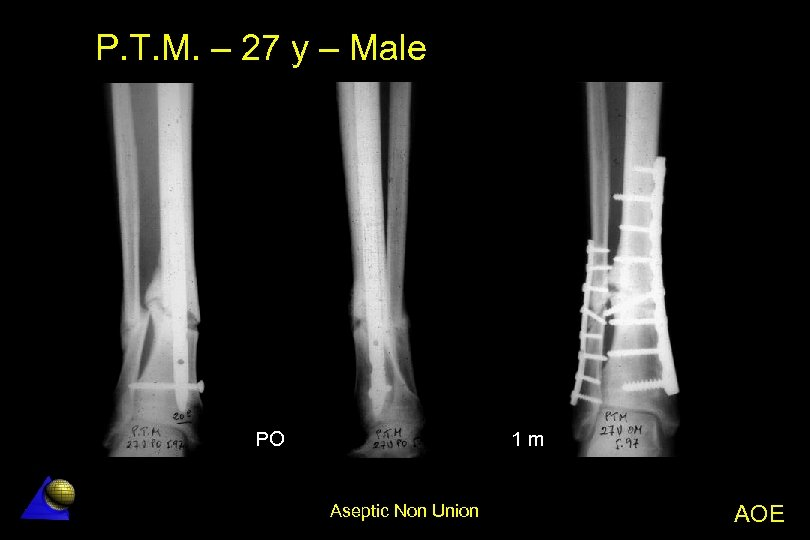 P. T. M. – 27 y – Male PO 1 m Aseptic Non Union