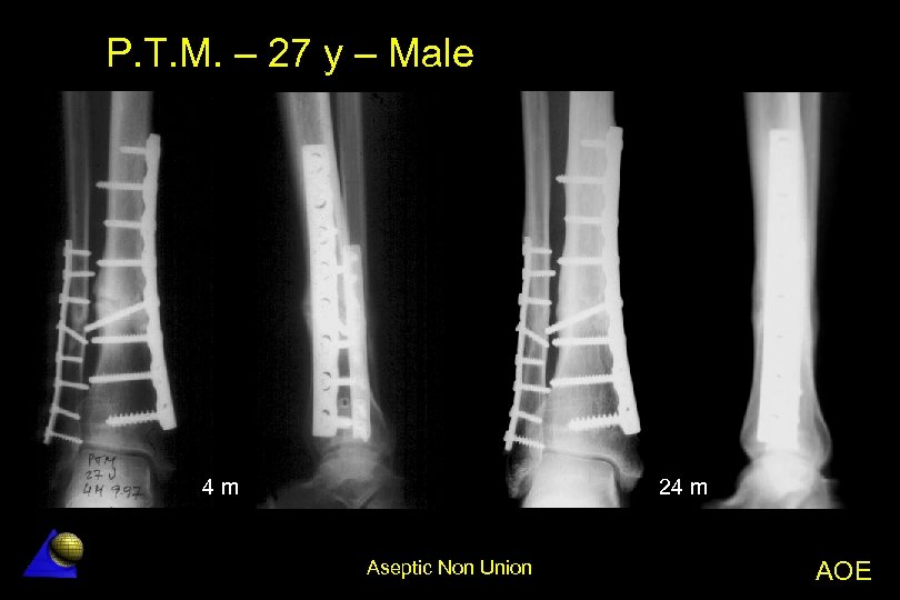 P. T. M. – 27 y – Male 4 m 24 m Aseptic Non