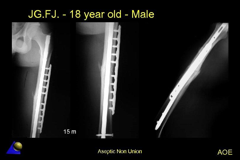 JG. FJ. - 18 year old - Male 15 m Aseptic Non Union AOE