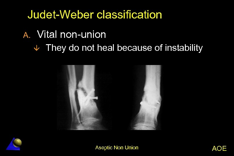 Judet-Weber classification A. Vital non-union â They do not heal because of instability Aseptic