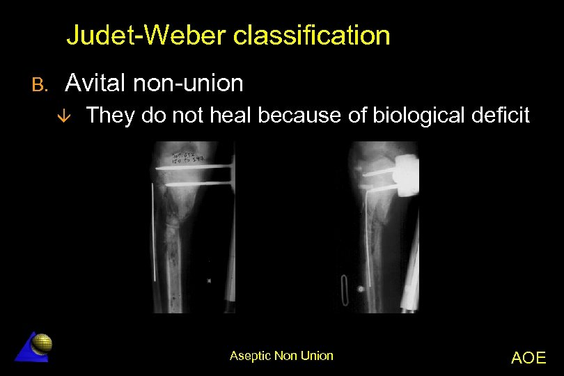Judet-Weber classification B. Avital non-union â They do not heal because of biological deficit