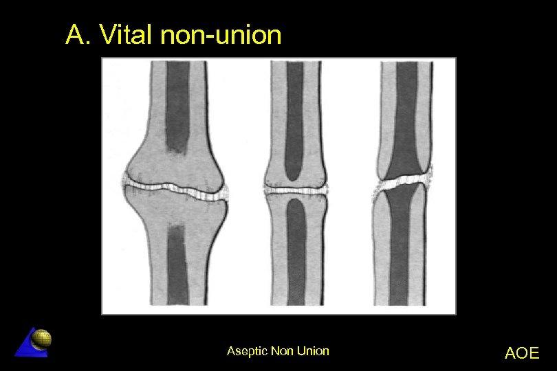 A. Vital non-union Aseptic Non Union AOE