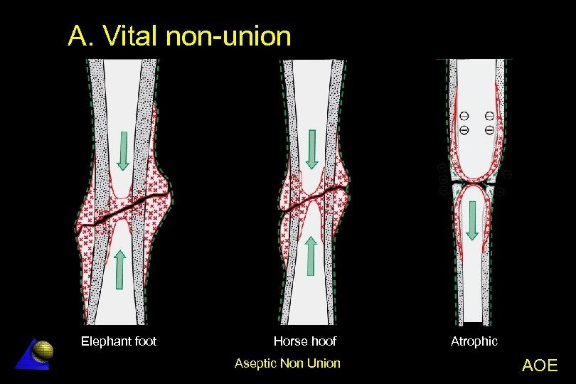 A. Vital non-union Elephant foot Horse hoof Aseptic Non Union Atrophic AOE