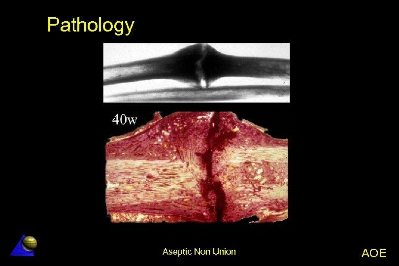 Pathology Aseptic Non Union AOE