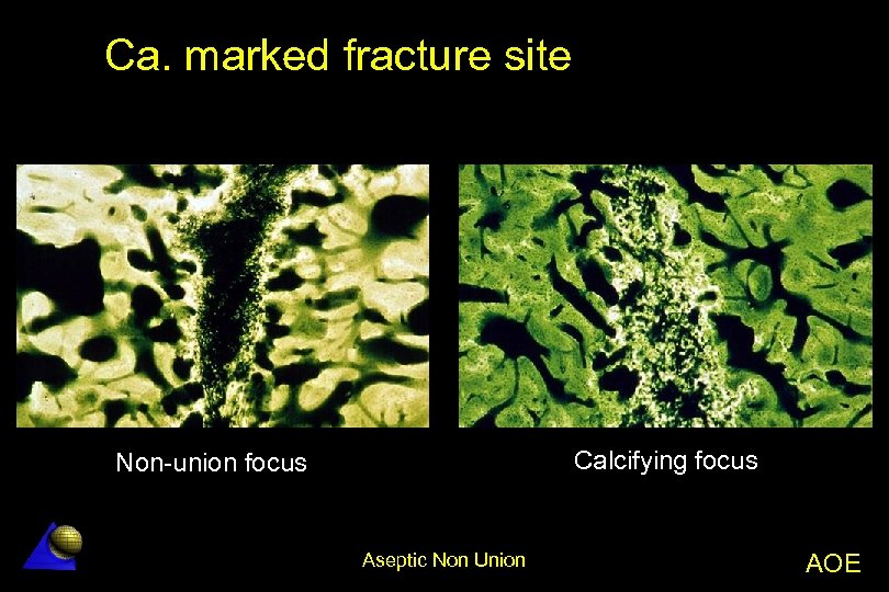 Ca. marked fracture site Calcifying focus Non-union focus Aseptic Non Union AOE