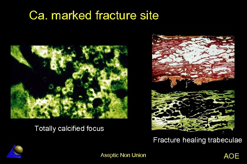 Ca. marked fracture site Totally calcified focus Fracture healing trabeculae Aseptic Non Union AOE