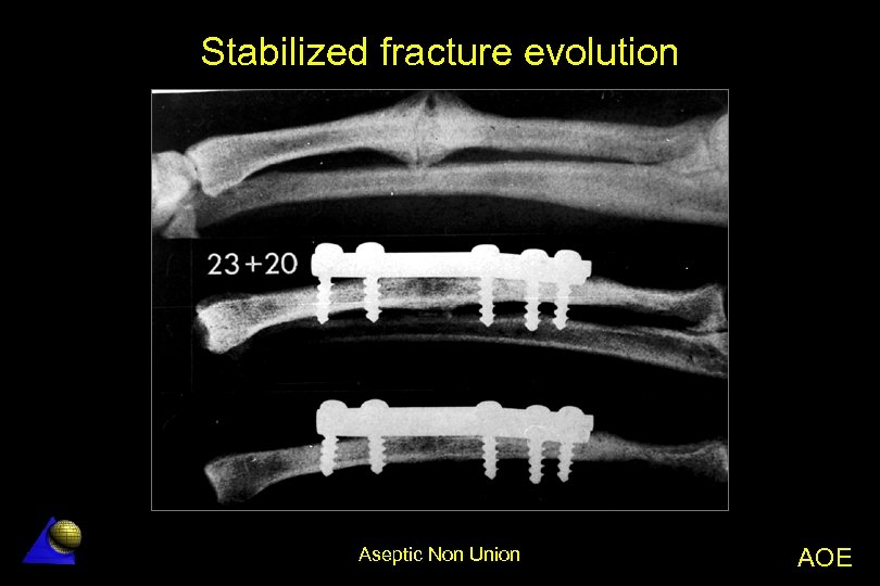 Stabilized fracture evolution Aseptic Non Union AOE