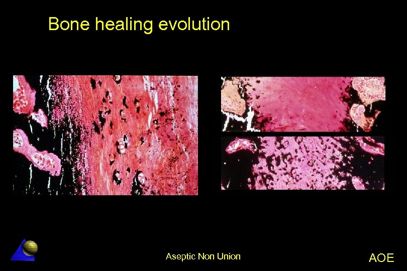 Bone healing evolution Aseptic Non Union AOE
