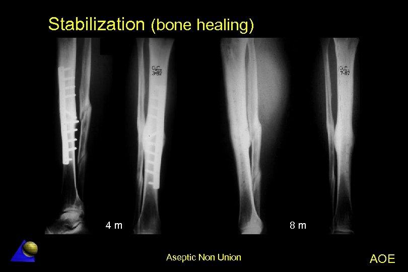 Stabilization (bone healing) 8 m 4 m Aseptic Non Union AOE