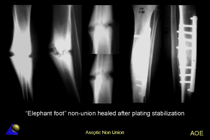"""Elephant foot"" non-union healed after plating stabilization Aseptic Non Union AOE"