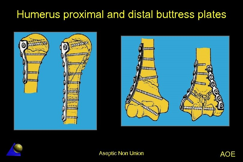 Humerus proximal and distal buttress plates Aseptic Non Union AOE