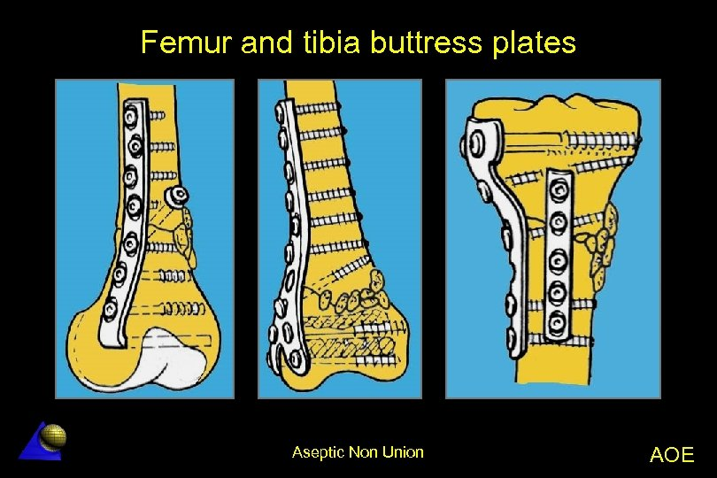 Femur and tibia buttress plates Aseptic Non Union AOE