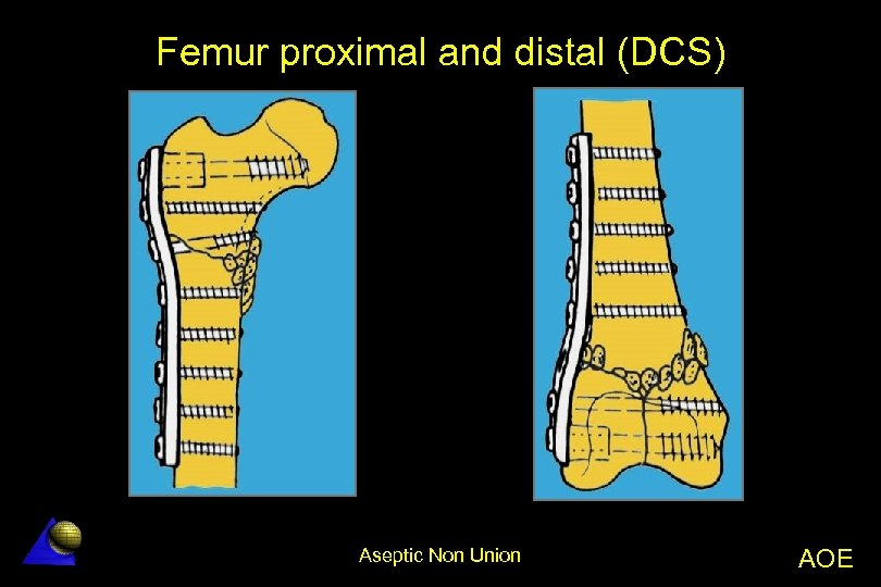 Femur proximal and distal (DCS) Aseptic Non Union AOE