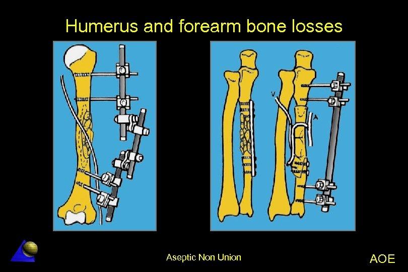Humerus and forearm bone losses Aseptic Non Union AOE