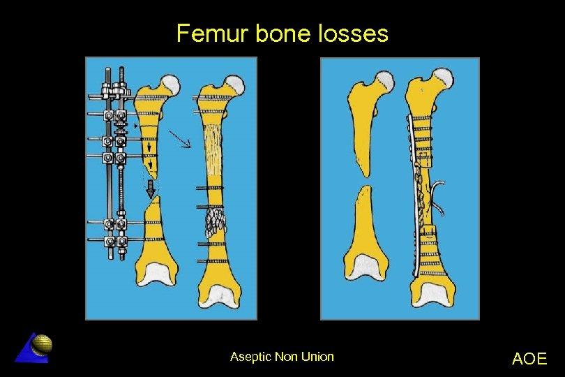 Femur bone losses Aseptic Non Union AOE