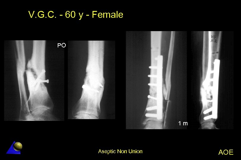 V. G. C. - 60 y - Female PO 1 m Aseptic Non Union