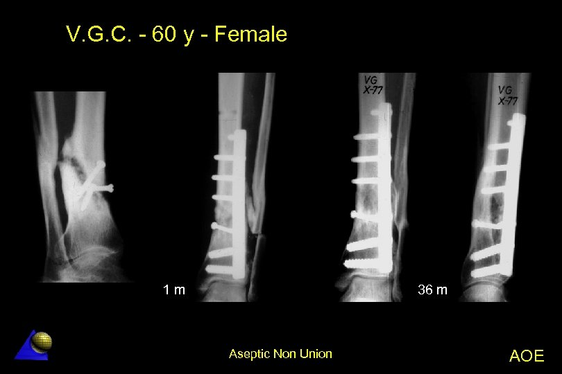 V. G. C. - 60 y - Female 1 m 36 m Aseptic Non