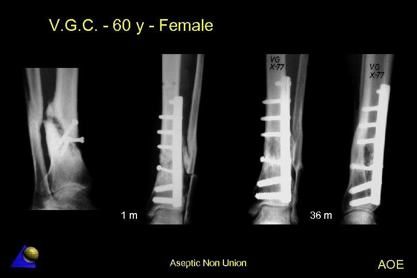 V. G. C. - 60 y - Female 1 m 36 m Aseptic Non
