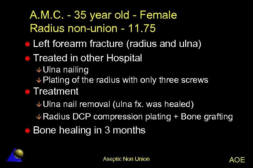 A. M. C. - 35 year old - Female Radius non-union - 11. 75