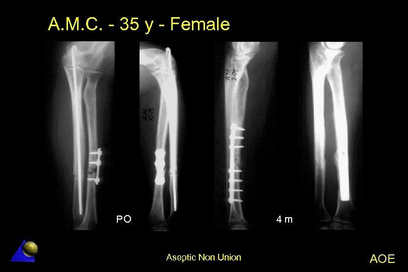 A. M. C. - 35 y - Female 4 m PO Aseptic Non Union