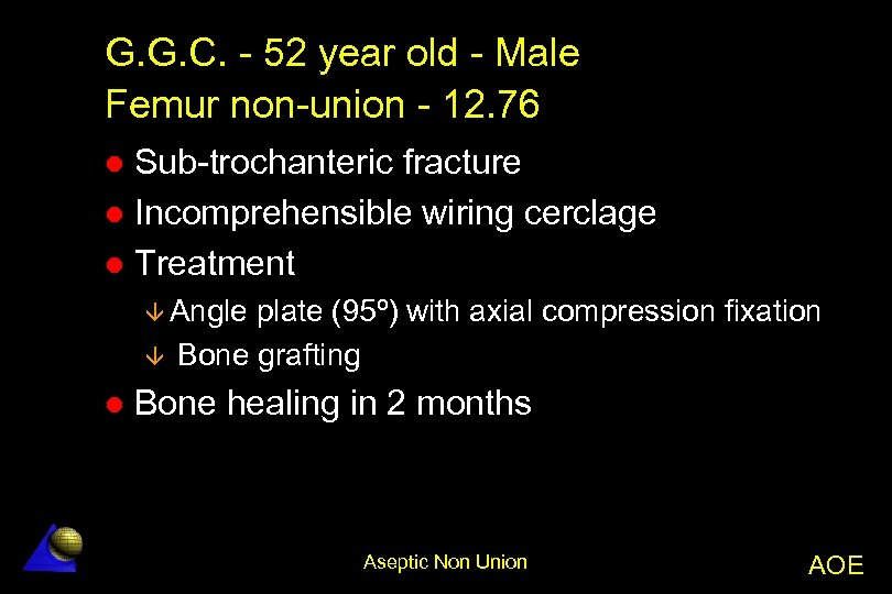 G. G. C. - 52 year old - Male Femur non-union - 12. 76