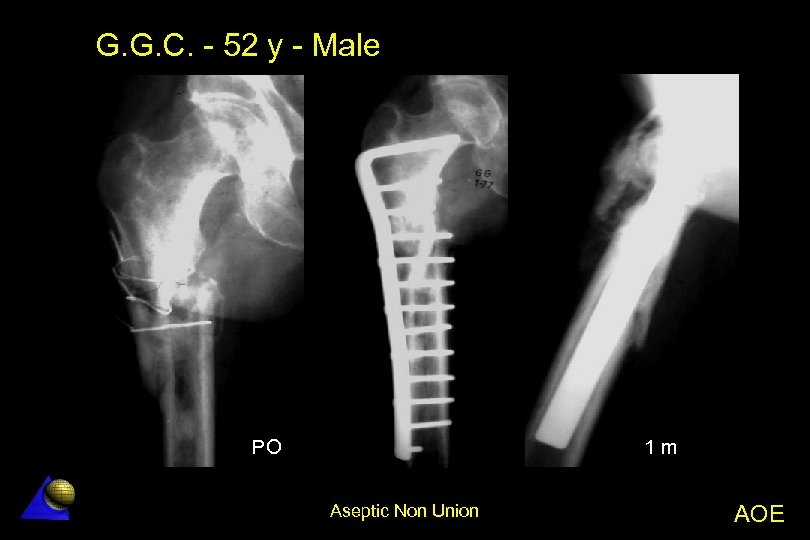 G. G. C. - 52 y - Male PO 1 m Aseptic Non Union
