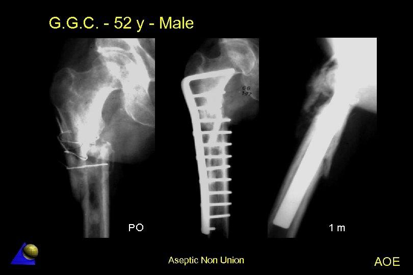 G. G. C. - 52 y - Male PO 1 m Aseptic Non Union