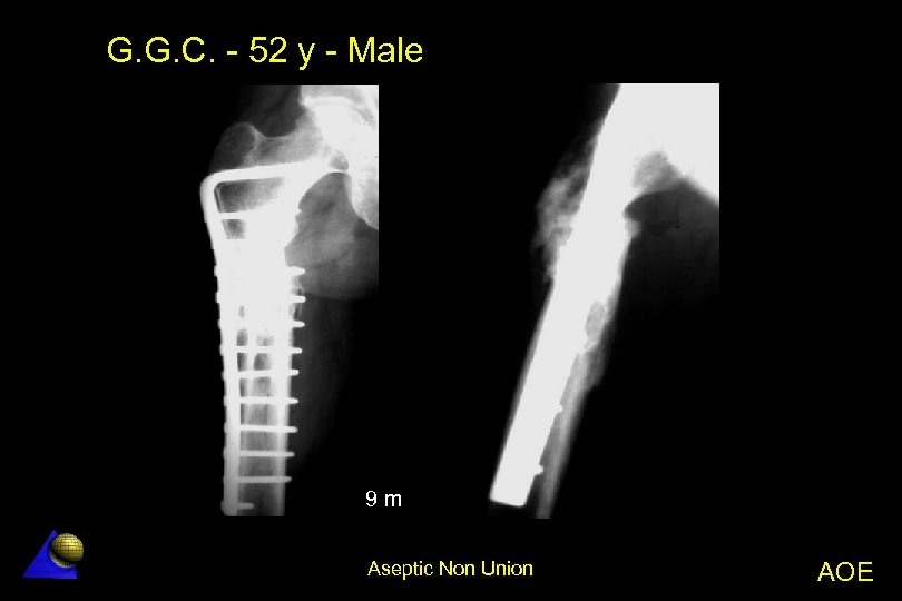 G. G. C. - 52 y - Male 9 m Aseptic Non Union AOE