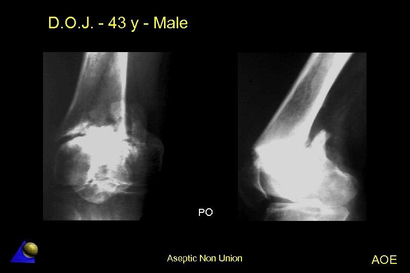 D. O. J. - 43 y - Male PO Aseptic Non Union AOE