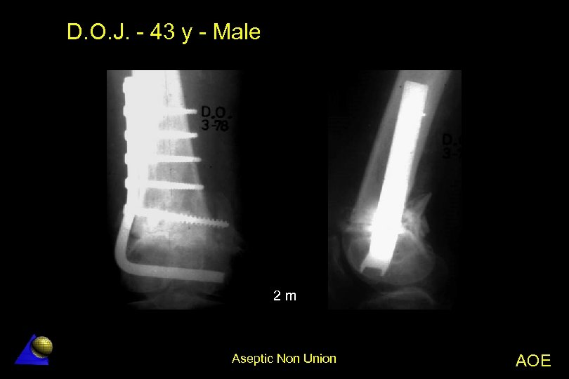 D. O. J. - 43 y - Male 2 m Aseptic Non Union AOE