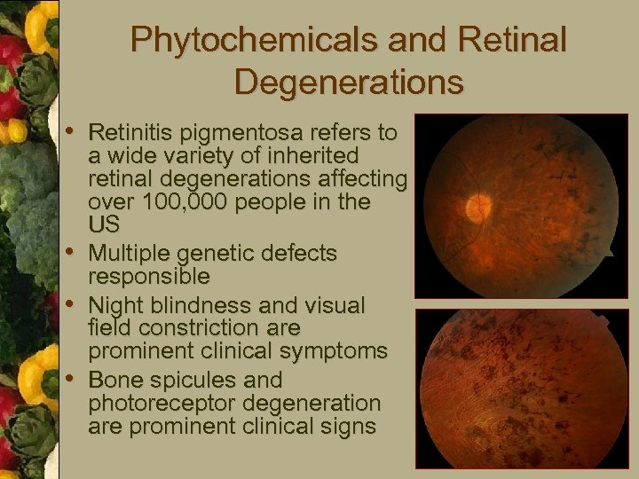 Phytochemicals and Retinal Degenerations • Retinitis pigmentosa refers to • • • a wide