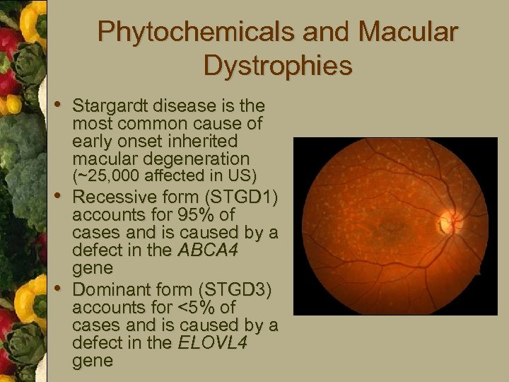 Phytochemicals and Macular Dystrophies • Stargardt disease is the most common cause of early