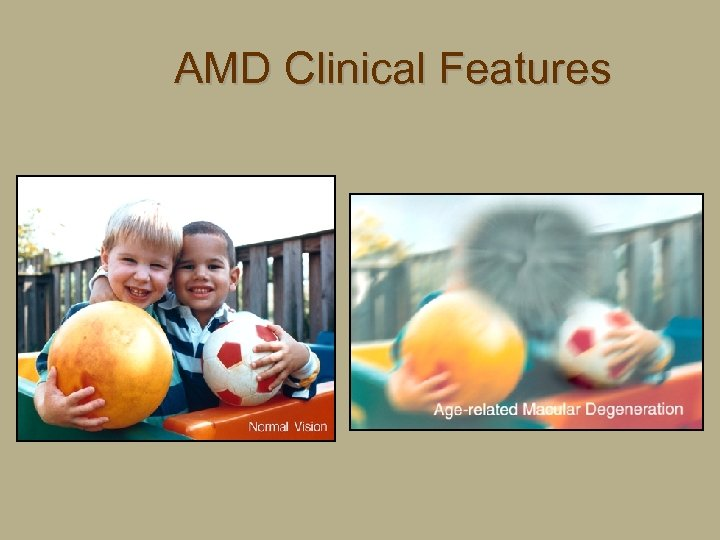 AMD Clinical Features