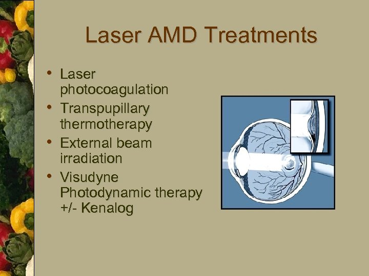Laser AMD Treatments • Laser • • • photocoagulation Transpupillary thermotherapy External beam irradiation