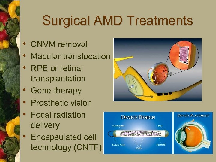 Surgical AMD Treatments • CNVM removal • Macular translocation • RPE or retinal •