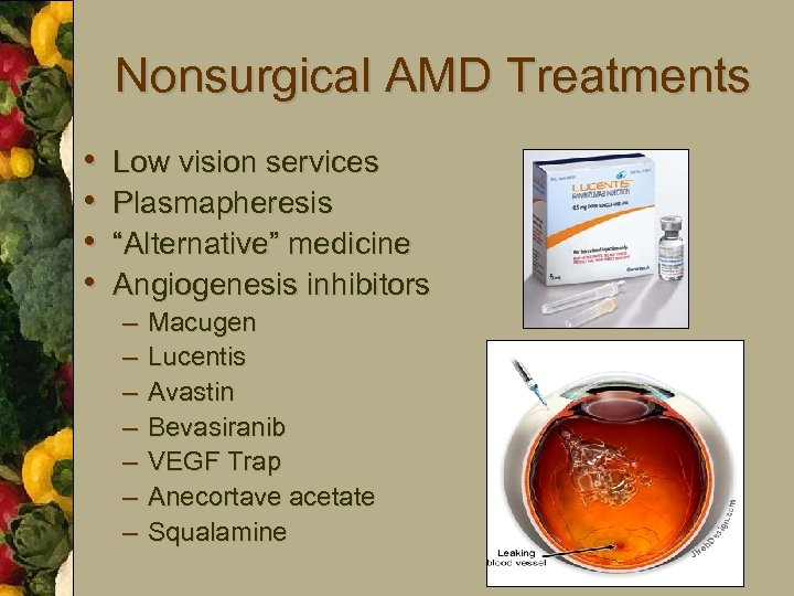 "Nonsurgical AMD Treatments • • Low vision services Plasmapheresis ""Alternative"" medicine Angiogenesis inhibitors –"