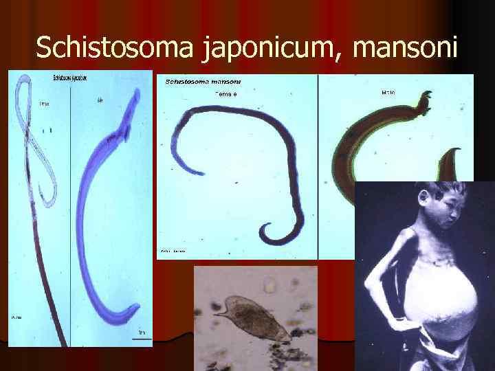 Schistosoma japonicum, mansoni